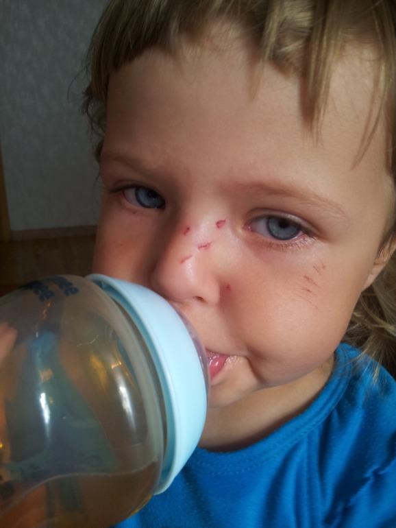 Ребенка поцарапала кошка