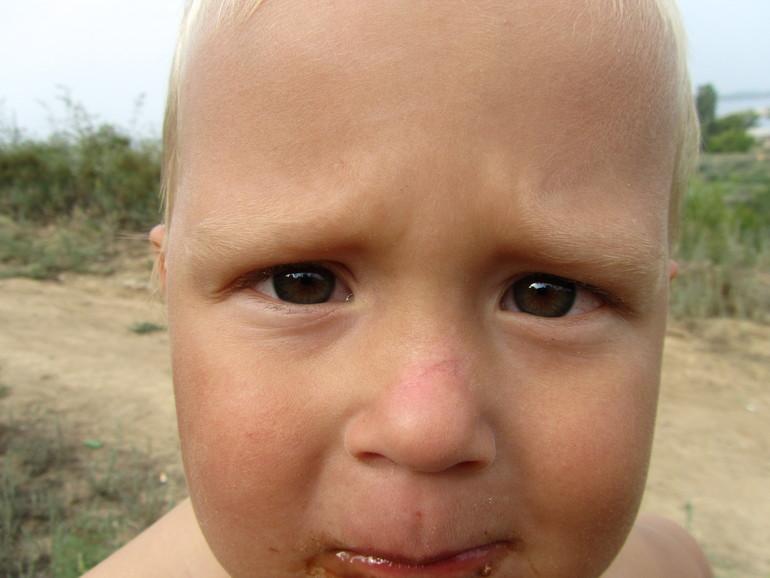 Шрамы, рубцы у ребенка Медицинская консультация 58