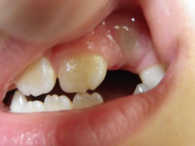 Синяк на десне при прорезывании зубов у ребенка фото