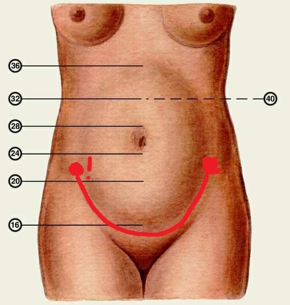 Шишки на косточках на ногах лечение