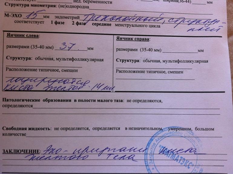 Эндометрий и дюфастон - запись пользователя Арина (KimuAna) в сообществе Зачатие в категории УЗИ, Фолликулометрия - Babyblog.ru