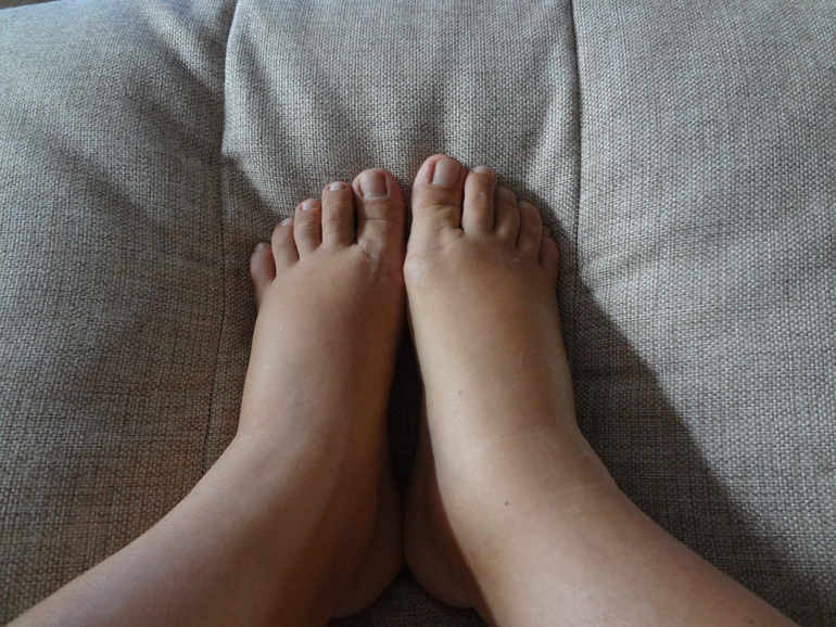 23 неделя беременности отекают ноги