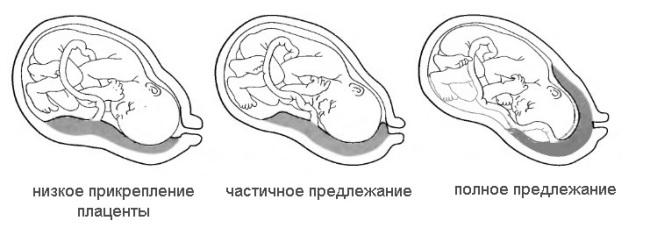 Плацента 43 мм от внутреннего зева