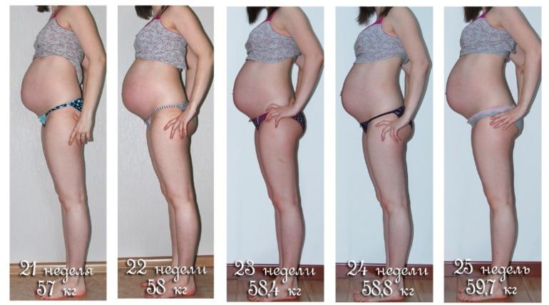 Похудение бедер при беременности